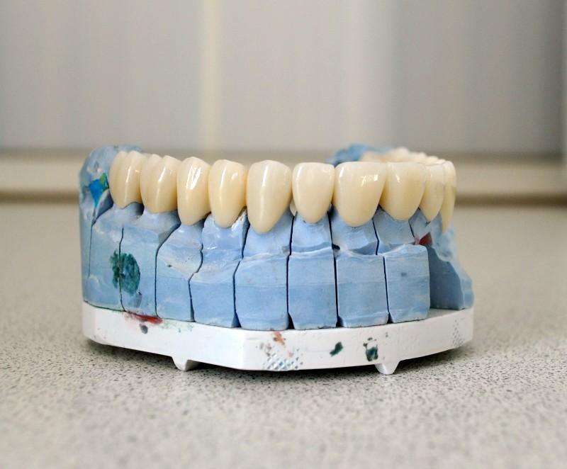 Преимущества зуботехнического магазина «Артикон»