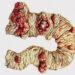 Опухолеподобные процессы