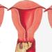 Плоскоклеточная метаплазия